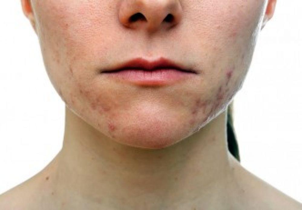 Cuidados Diários Para a Pele Propensa a Acne